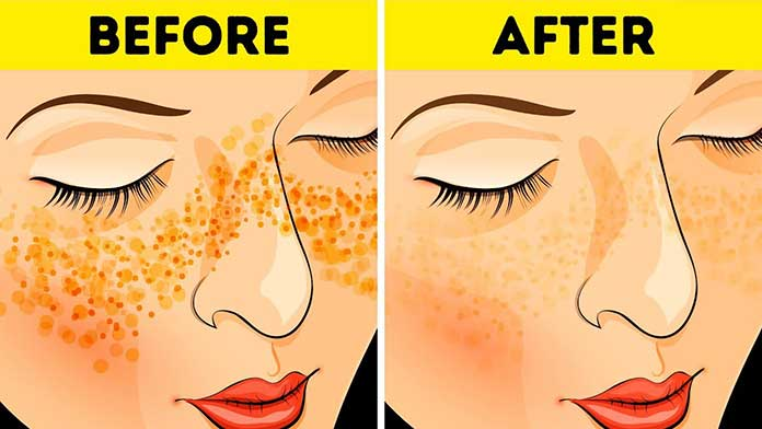 remove dark spots caused by pimples