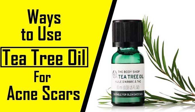 9 Ways How Use Tea Tree Oil For Hyperpigmentation Scars